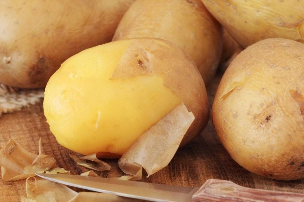 Tutti i modi per cucinare le patate - Foto 14