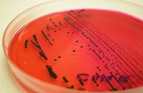 Allarme salmonella: ecco i prodotti a rischio