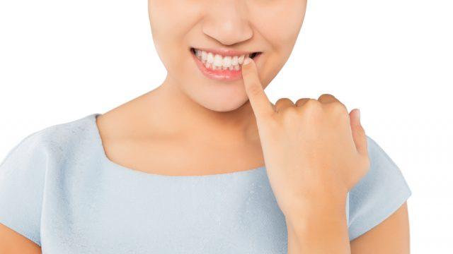 cibo incastrato nei denti
